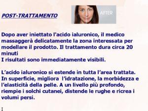 filler-presentaione3