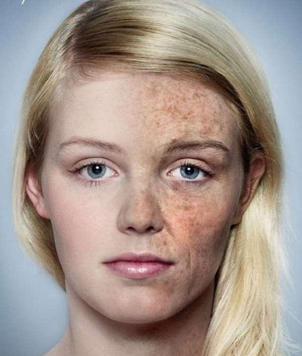 skin agin