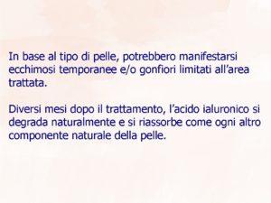 filler-presentaione4