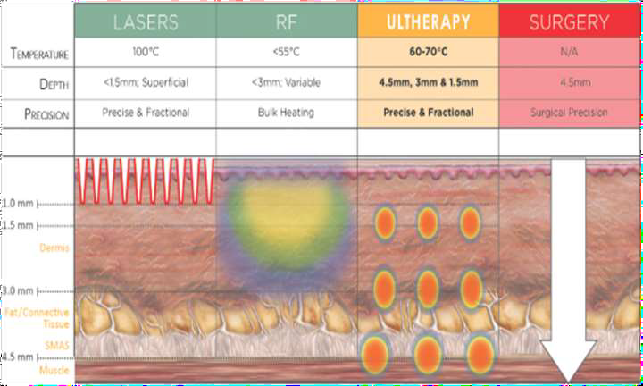 confronto rd laser
